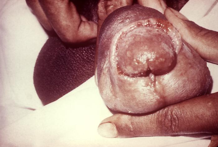 gonorrhea-on-anus-sneha-xxx-fickung